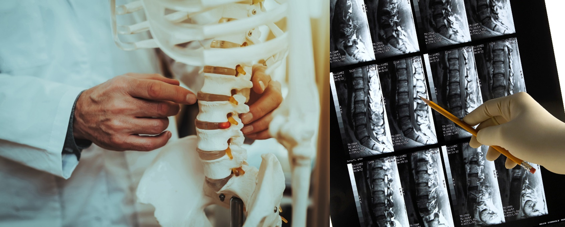 How a Chiropractor Can Help - The DeHayes Group